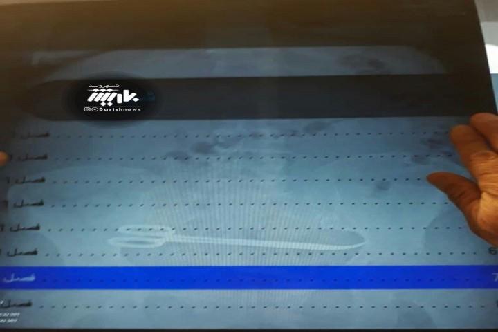 جاماندن قیچی در بدن بیمار پس از عمل در یکی از بیمارستان های شهر