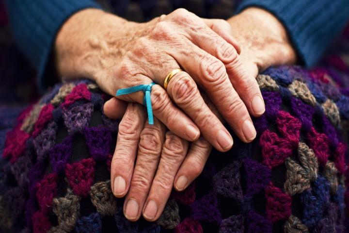 آلزایمر بیماری که قابل پیشگیری است