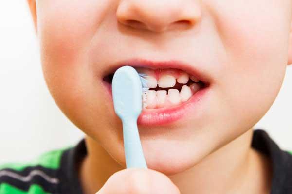 پوسیدگی دندان شیری رشد جوانههای دائمی را مختل میکند