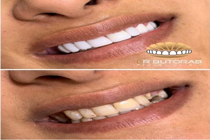 ونیر کامپوزیت چگونه به داشتن لبخند زیبا کمک میکند